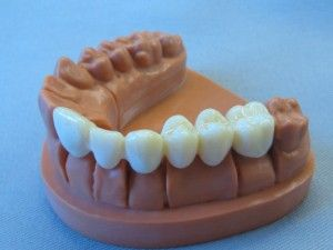 3D Printed Teeth
