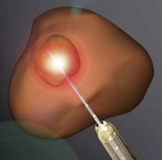 Laser ablation is used to treat many cancers, and is becoming a more viable solution for treating prostate cancer