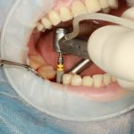 A dental implant being inserted